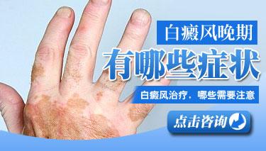 手部白癜风需注意的护理措施有哪些